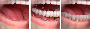 fija-sobre-implantes-clinica-dental