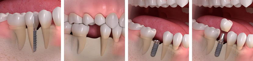 implantes-unitarios-clinica-dental